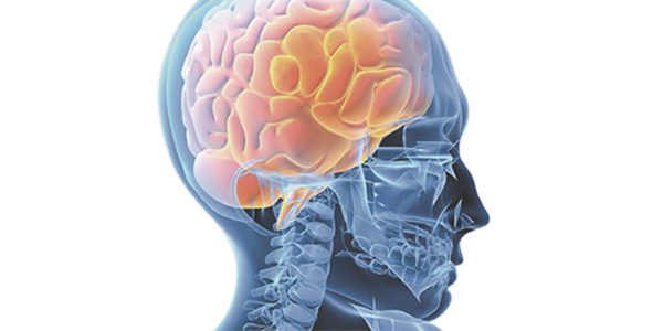 enfermedades neurologicas cerebro