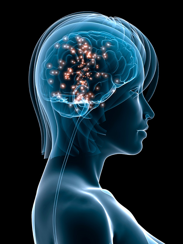 630-esclerosis-multiple