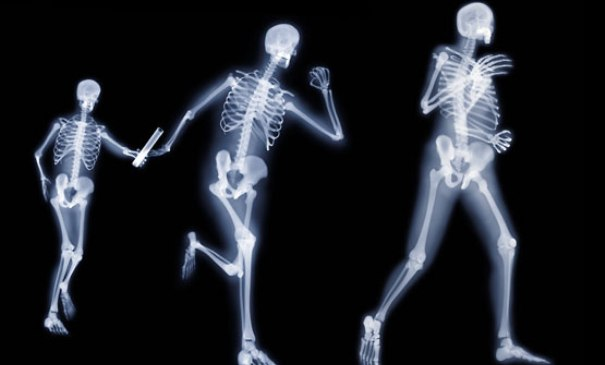 huesos-fuertes