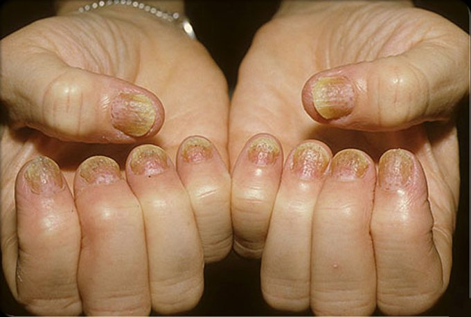 psoriasis-causes-symptoms-treatments-s3-photo-of-psoriasis-on-fingernails
